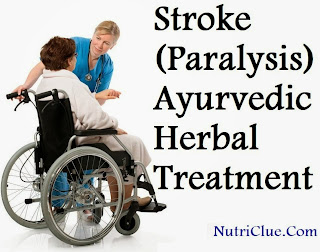 Stroke (Paralysis) - Ayurvedic Herbal Treatment