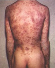 penyakit sifilis akut,penyakit sifilis