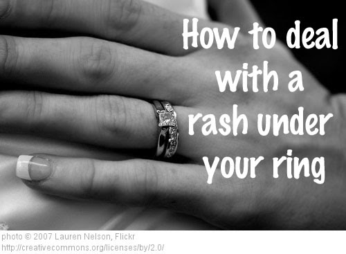 Dr Visha Blog The Rash Under The Ring