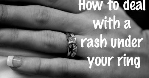 Dr Visha Blog The Rash Under The Ring