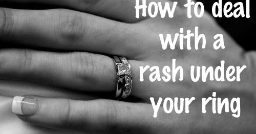 dr visha blog the rash under the ring - Wedding Ring Rash