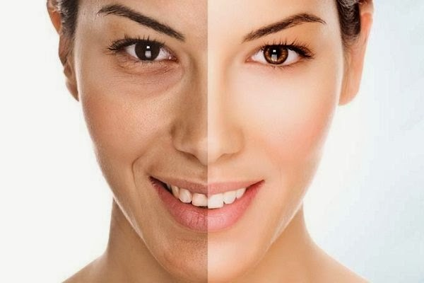 Antiageing Beauty treatments