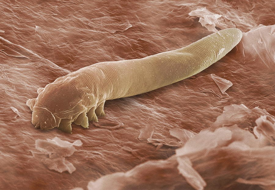 Demodécica, Demodex, Demodicose, Demodex
