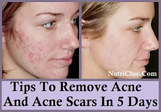 Tips To Remove Acne And Acne Scars In 5 Days