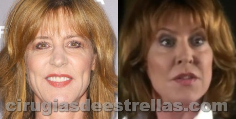 Christine Lahti Botox