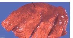 Hình 2: Viêm phổi