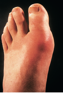 gout treatment other than allopurinol can garlic help gout high uric acid urine causes