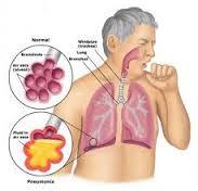 Penyakit Penyakit Pernafasan Yang Paling Sering Diderita Oleh Orang.