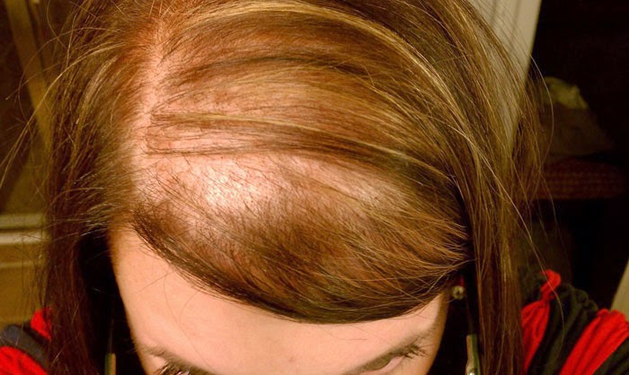 Why Men And Female Suffers Hair Fall Problem?