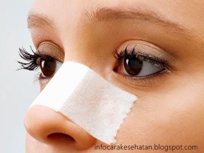 Cara Memancungkan Hidung Pesek Secara Alami