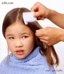 علاج حشرة الرأس القمل والوقاية منها