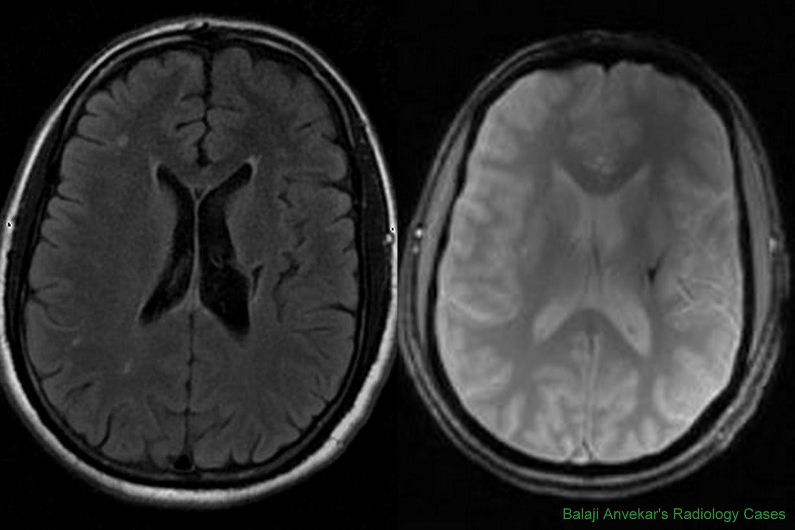 Dr Balaji Anvekar\'s Neuroradiology Cases: Wallerian degeneration MRI ...