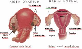 Definisi Penyakit Kista Ovarium