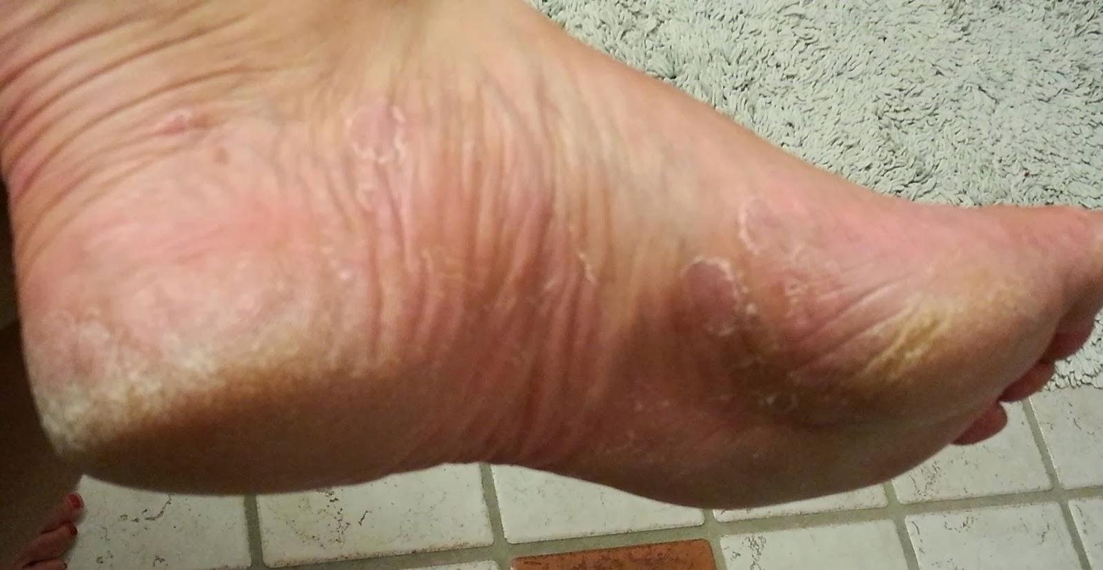 fotkräm för torra fötter