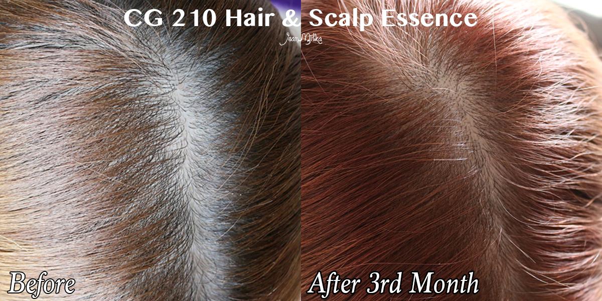 cg 210, rambut rontok, rambut, hair, kerontokan rambut, atasi kerontokan, jean milka, jeanmilka, hair and sclap serum