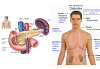 Ciri-Ciri Terkena Penyakit Diabetes Melitus