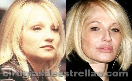 Ellen Barkin antes y después