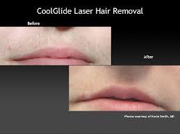 l'épilation au laser conçues à la croissance des poils