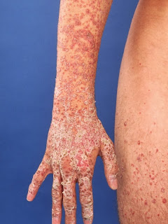 Psoriasis Guttata Causas