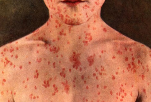 images of adult onset of measles