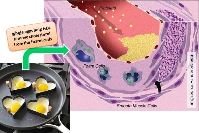 Study Links Eggs to Higher Cholesterol and Risk of Heart ...