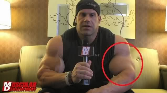 bad steroids injection