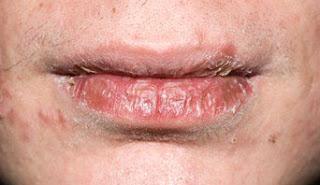 masalah bibir kering, punca masalah bibir kering, bibir bernanah, lip magic collagen zarraz paramedical, rawatan masalah bibir
