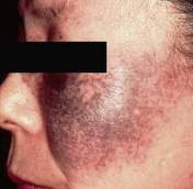 masalah melasma, masalah pigmentasi, masalah pigment kulit, mengatasi masalah pigmentasi, produk yang selamat untuk rawatan pigmentasi, produk zarraz paramedical, masalah kulit pigmentasi