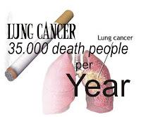 Lung cancer metastasis to bone