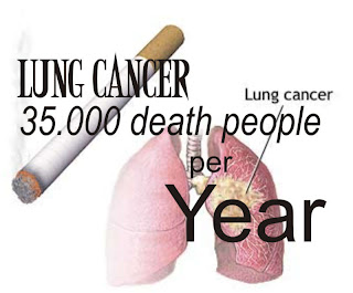 How many people die from lung cancer