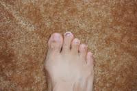 黒爪(爪下血腫)