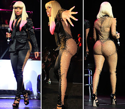 nicki minaj bum implants before and after
