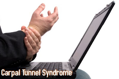 sindrom carpal tunnel yang perlu anda ketahui