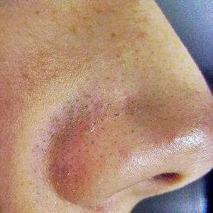 Blackhead Infection