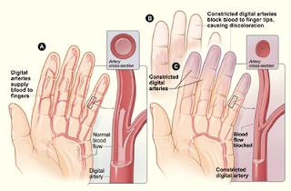 Cancer Symptoms: What is Gangrene symptoms