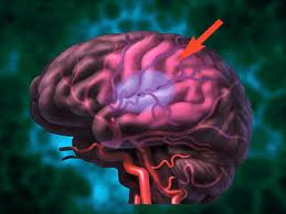 Neglect and anosognosia after first-ever stroke