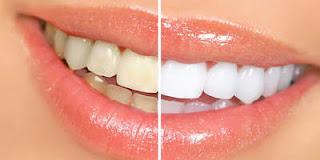 creme-dental-caseiro-clarear-dentes