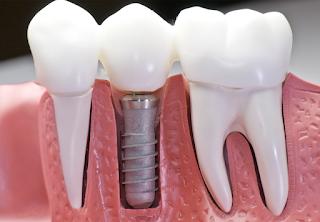 Vídeo-Aula: Novas Técnicas Cirúrgicas em Grandes Deficiências Ósseas em Implantodontia