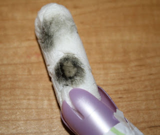 Tale of the Moldy Tampon
