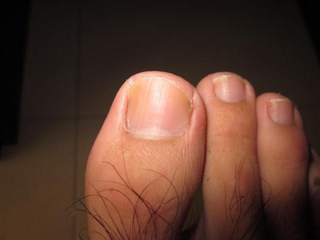 腳指甲更生記,長出來了