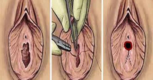 Comment utiliser le vagin artificiel en plastique