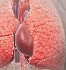 Cara Melindungi Paru-paru