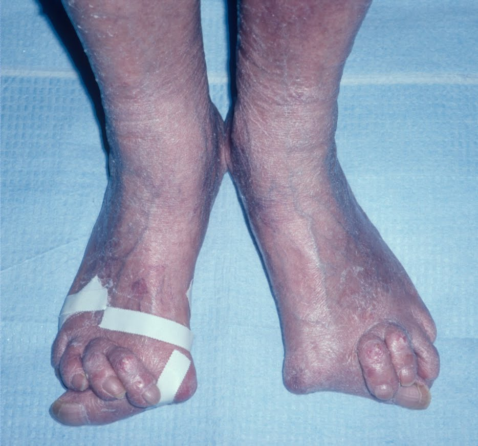 foot symptoms for rheumatoid arthritis Rheumatoid arthritis pertains to a chronic disease involving the immune system, in which joints undergo inflammation, thus causing pain and stiffness.