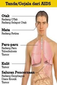 Gejala/ Tanda Terjangkit Penyakit HIV/AIDS PADA Pria/Wanita