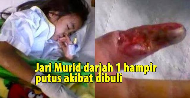 JARI MURID DARJAH 1 HAMPIR PUTUS DIBULI RAKAN