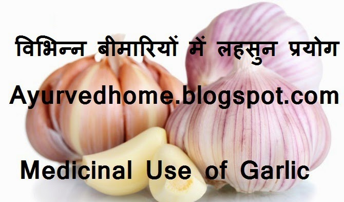 Human Diseases and Garlic Use at Home, विभिन्न बीमारियों में लहसुन प्रयोग,  Health Benefits of Garlic as per Ayurved , abdominal pain and garlic, Baldness and Garlic use, Ear discharge, Garlic treat dental disease, headache cure with lahsun, Lice and hair problems, To treat fever, Treatment of Paralysis and heart with garlic,