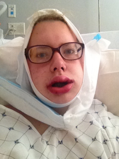 Double jaw surgery a throwback to that time i had jaw surgery june 4 2015 forumfinder Images
