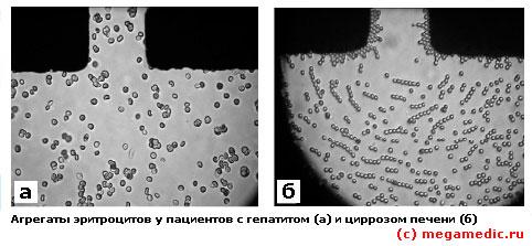 Эритроциты при больной печени