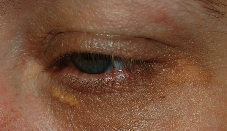 Fat Deposits Under Skin around Eyes