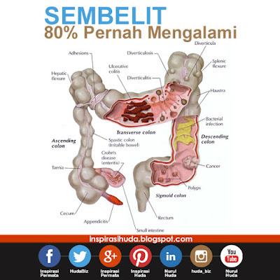 Sakit Sembelit, Ubat Sembelit, Supplement, Produk Shaklee